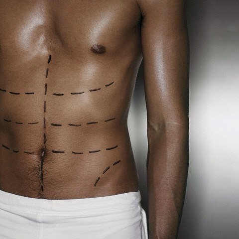 Plastic Surgery Expectations by Men