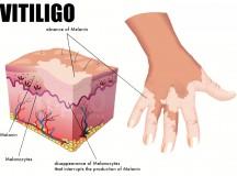 7 Natural Home Remedies For Vitiligo – No Miracle