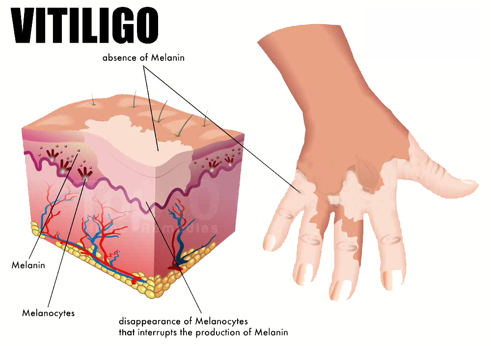 7 Natural Home Remedies For Vitiligo - No Miracle