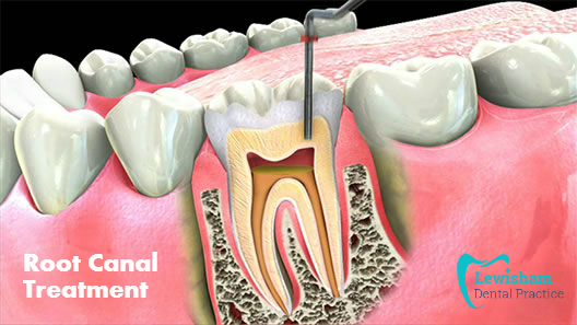Everything One Needs To Know About Root Canal Treatment
