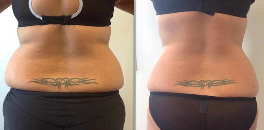 Permanently Getting Rid Of Unwanted Fat Through 3D Liposuction