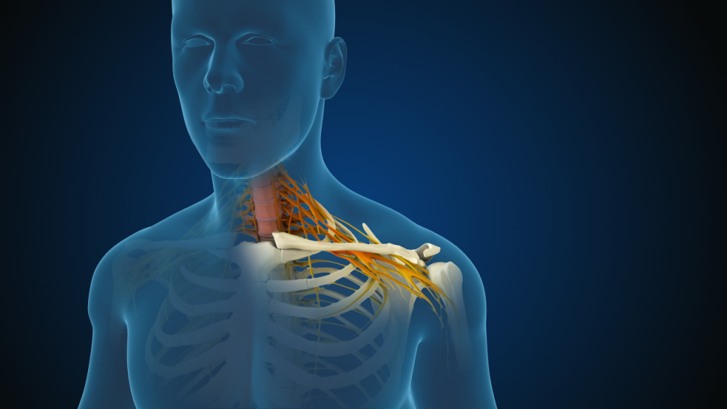 What Is Cervical Radiculopathy What Are The Treatment Options