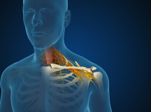 What Is Cervical Radiculopathy? What Are The Treatment Options?